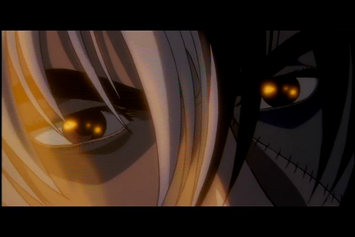 Black Jack (Original Video Animation Series) Episode 9: Black Jack Karte 9th - The Carbuncle